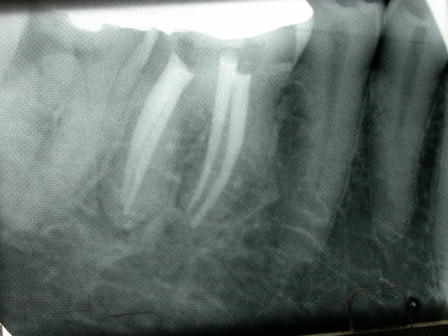 2 Re-treatment of a lower right first molar with GT Hand File - post-op